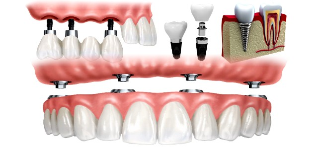 Dental Procedure Videos